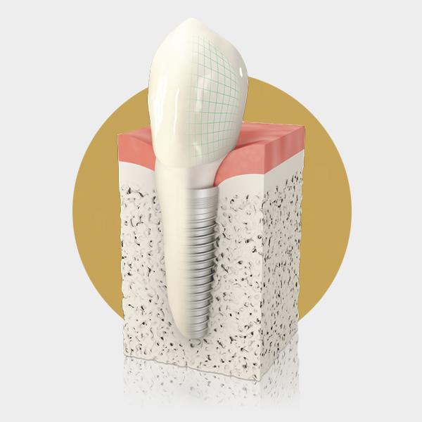 Modell eines Zahnimplantats Langenhagen