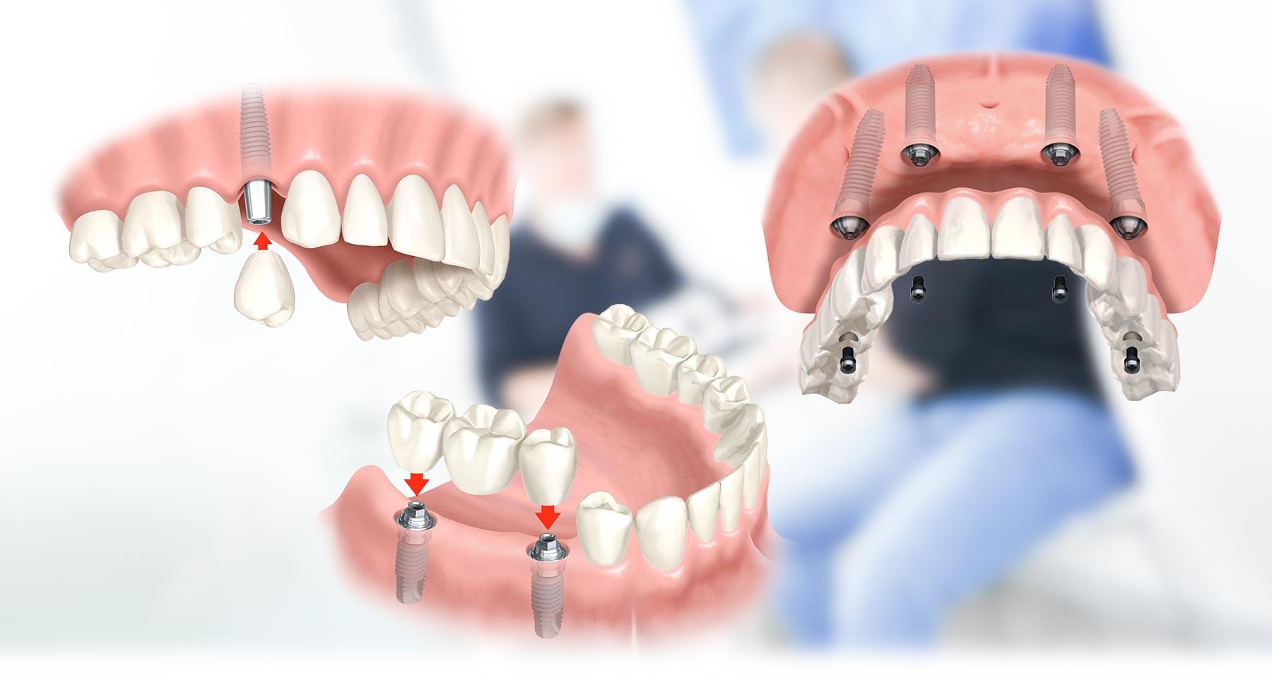 Grafik mehrerer Zahnimplantate Langenhagen, die in den Kieferknochen eingesetzt wurden